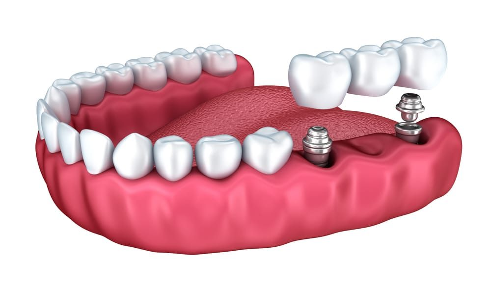 Where can I find Dental Implants in Miami Gardens ?