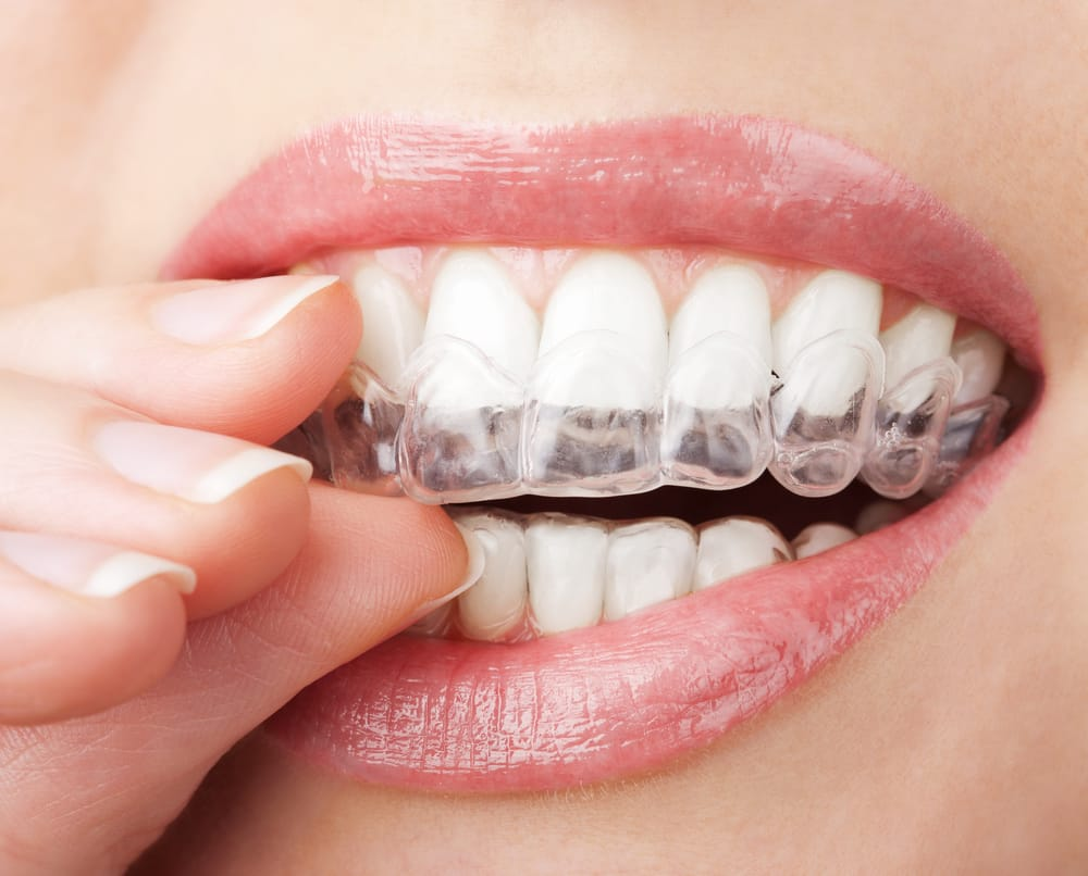 which miami gardens dentist offers invisalign?