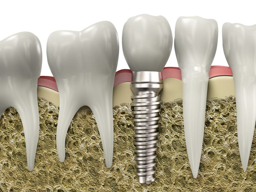 where is the best dental implants in north miami located?