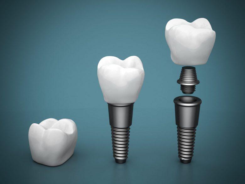 where is the best aventura dental implants?