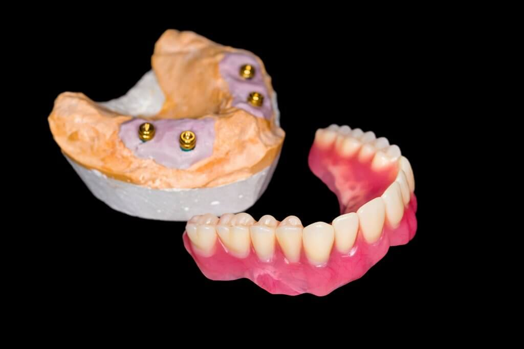 who offers dentures north miami?