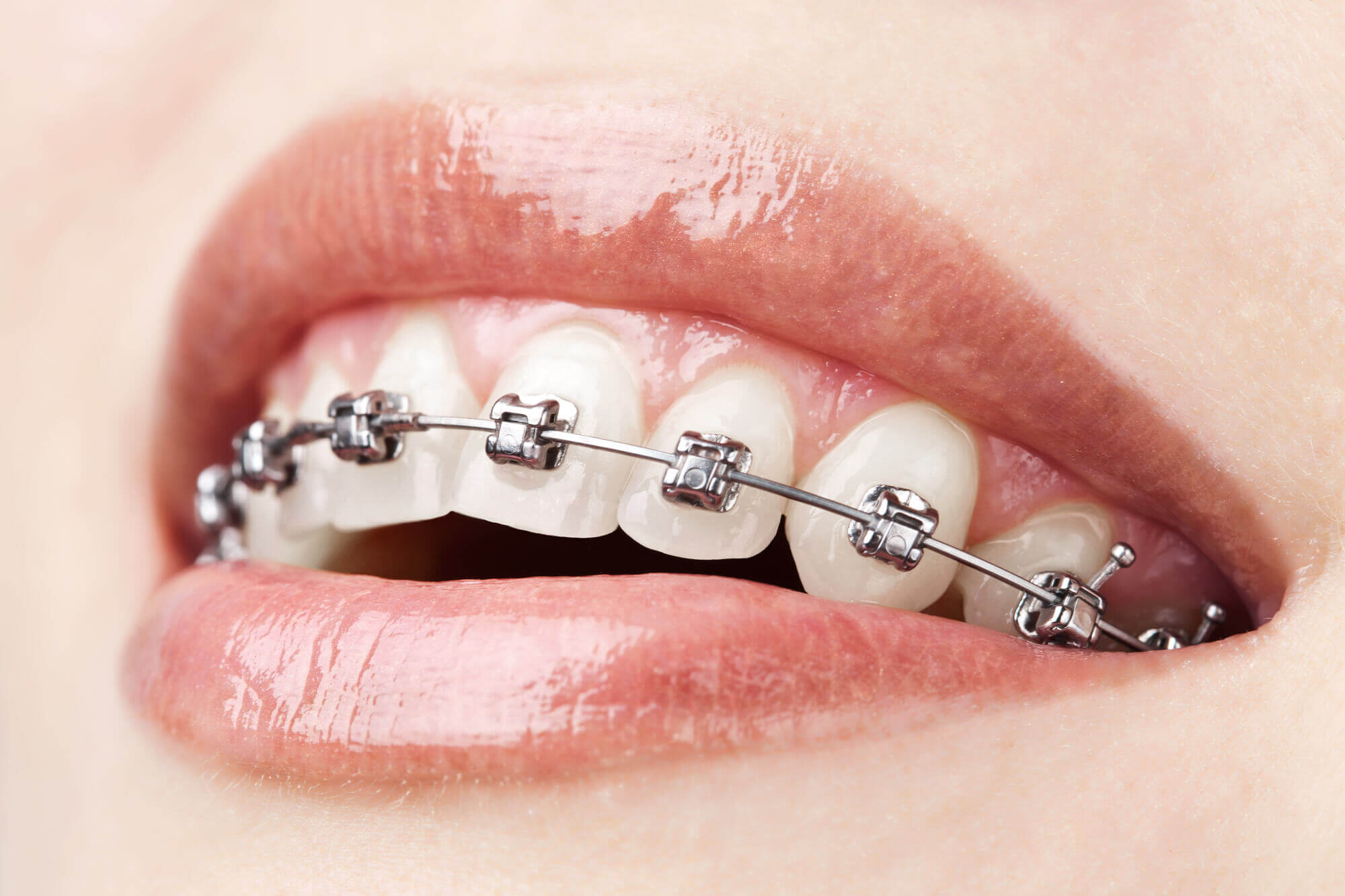 who offers the best orthodontics aventura?