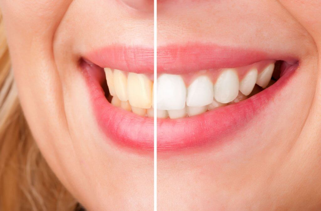 who offers the best north miami dentist?