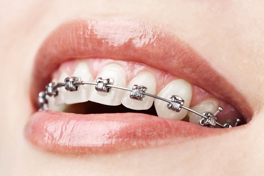 where is the best orthodontist north miami?