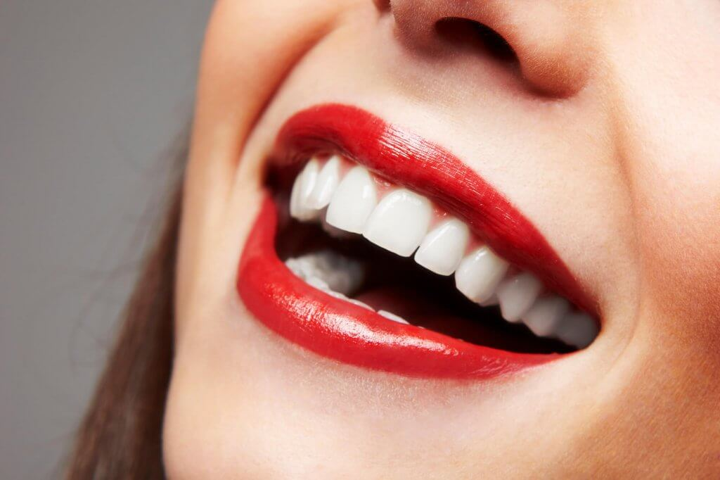 what is teeth whitening north miami?
