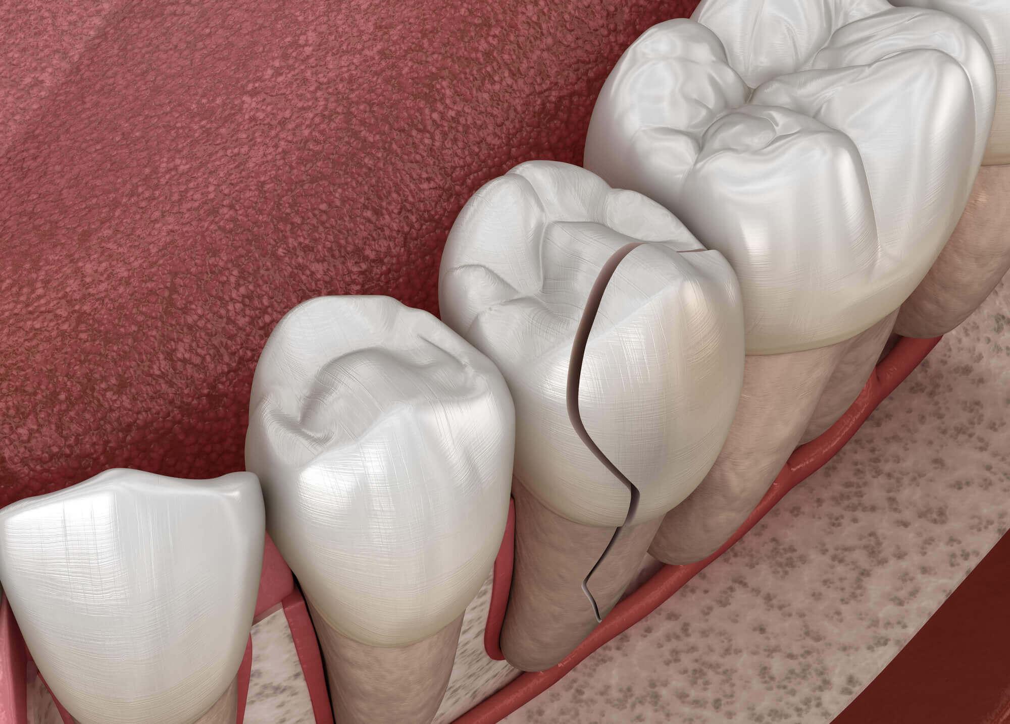 Where can I find a North Miami Dentist?