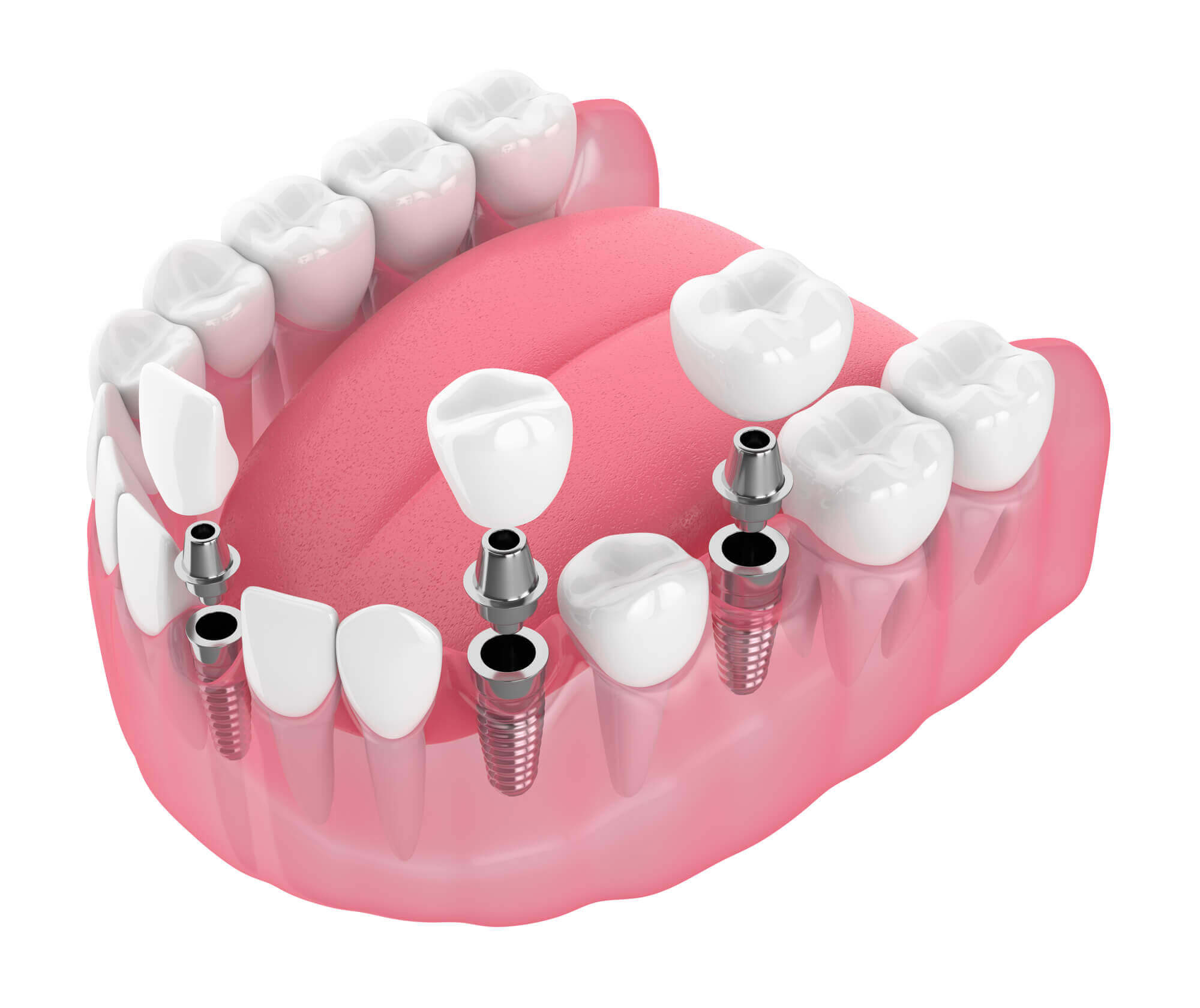 Where can I get Dental Implants Sunny Isles FL?