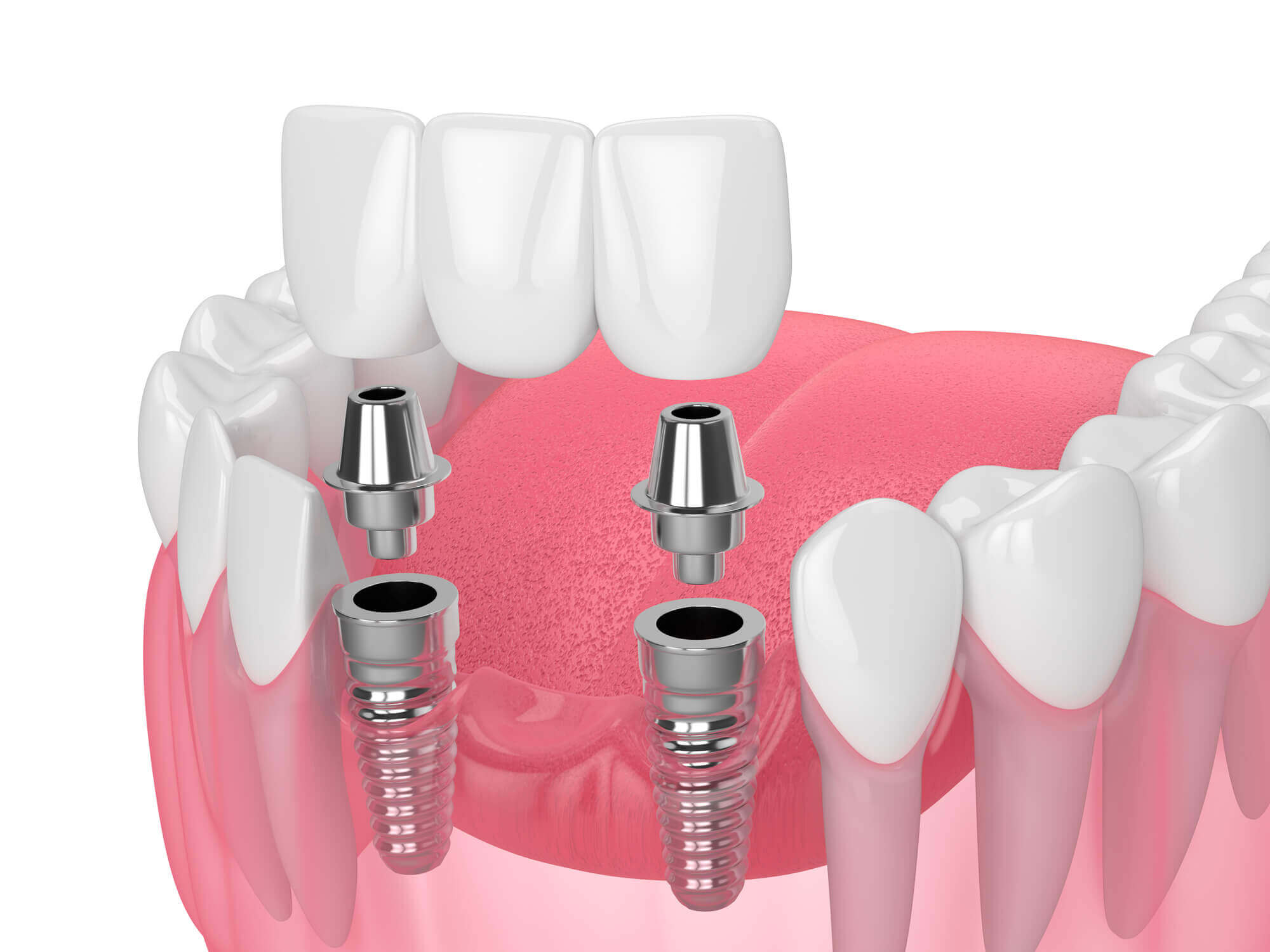 Where to get Dental Implants North Miami?