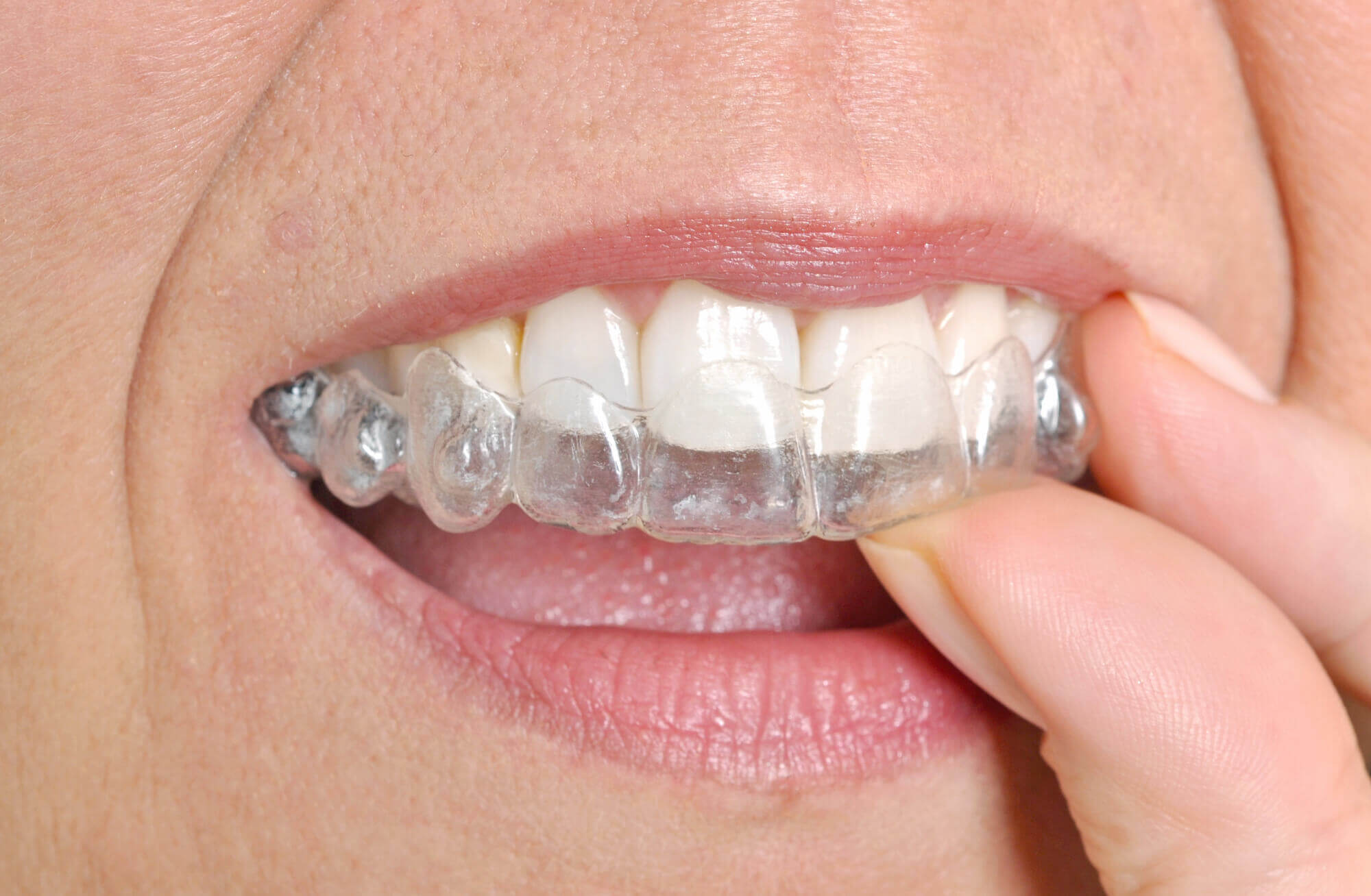 Where can I get Invisalign North Miami?