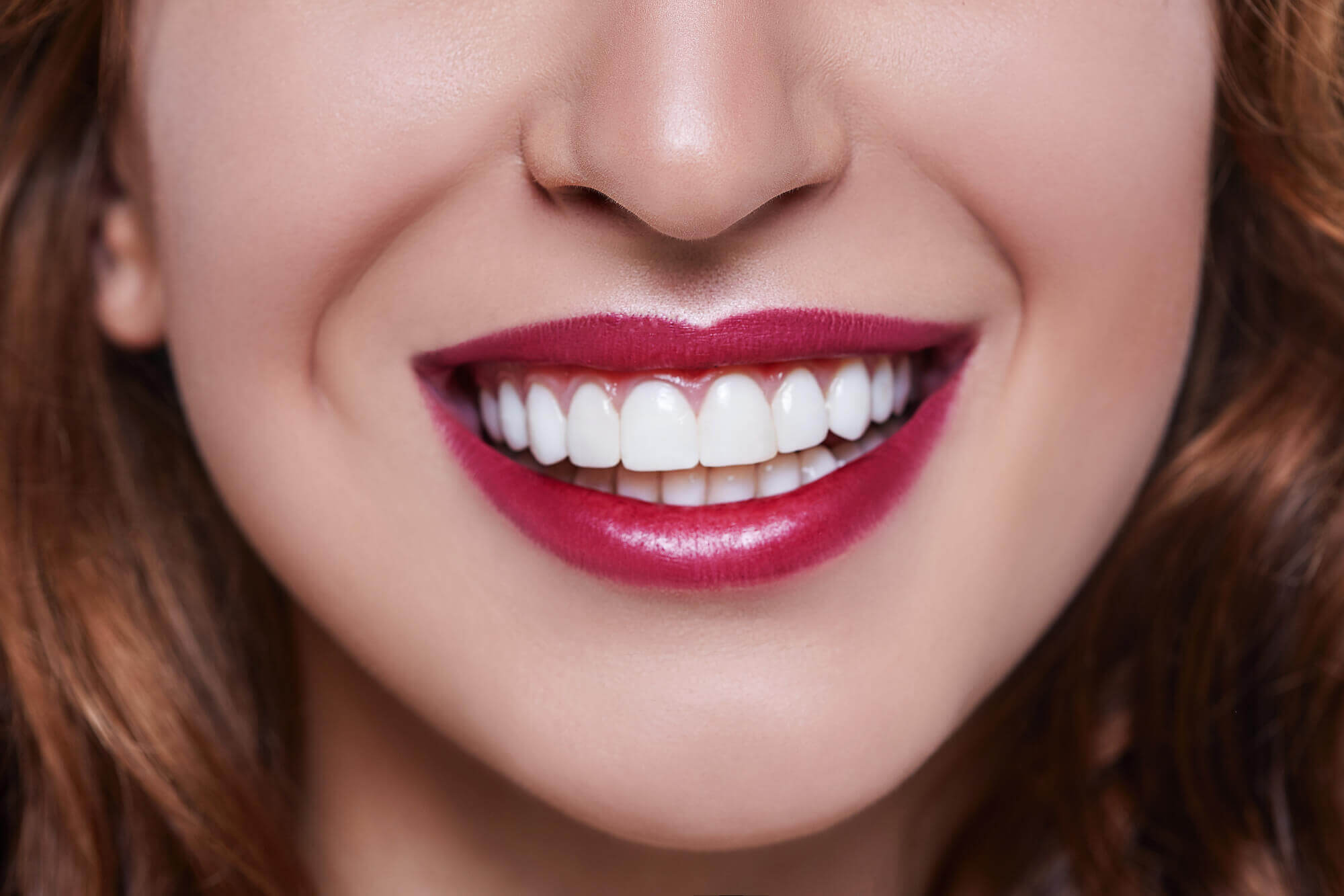 Where can I find Teeth Whitening Aventura?