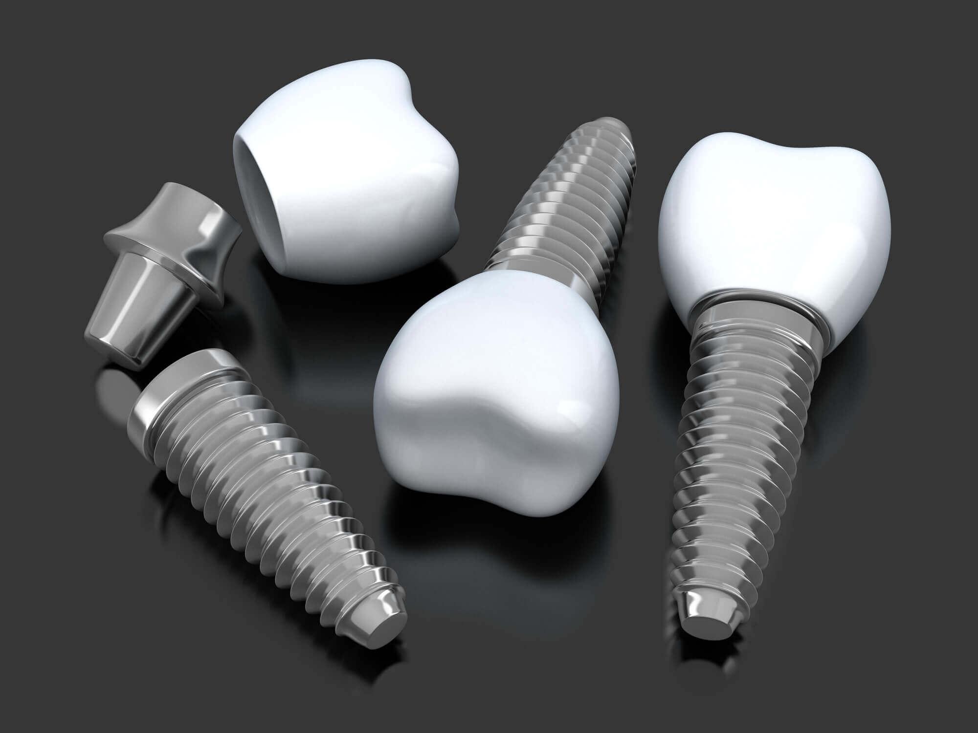 Dental Implants Aventura