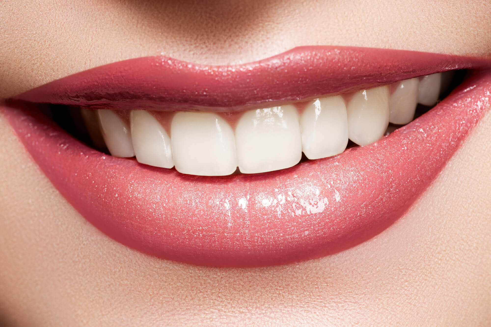 Closeup of bright teeth after a Teeth Whitening in North Miami