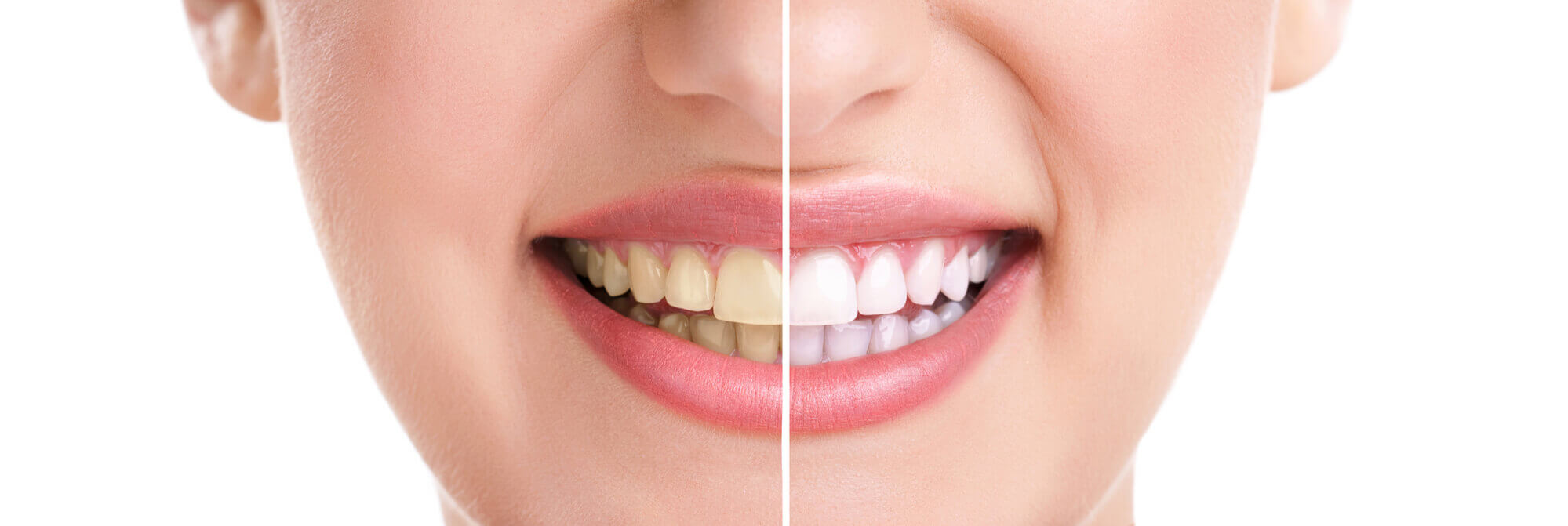 Before and after photos of teeth whitening at Aventura Dentist