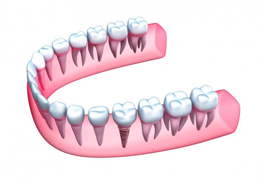 Dental Implants in Aventura
