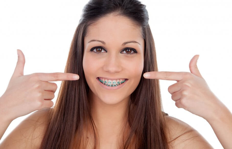 Woman with braces smiling and pointing at her teeth at the Orthodontist in North Miami