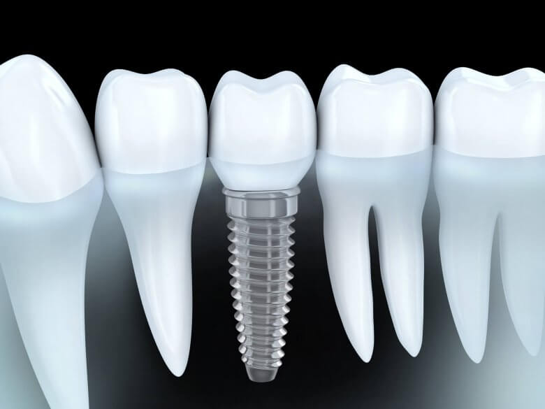 Dental Implants Sunny Isles FL
