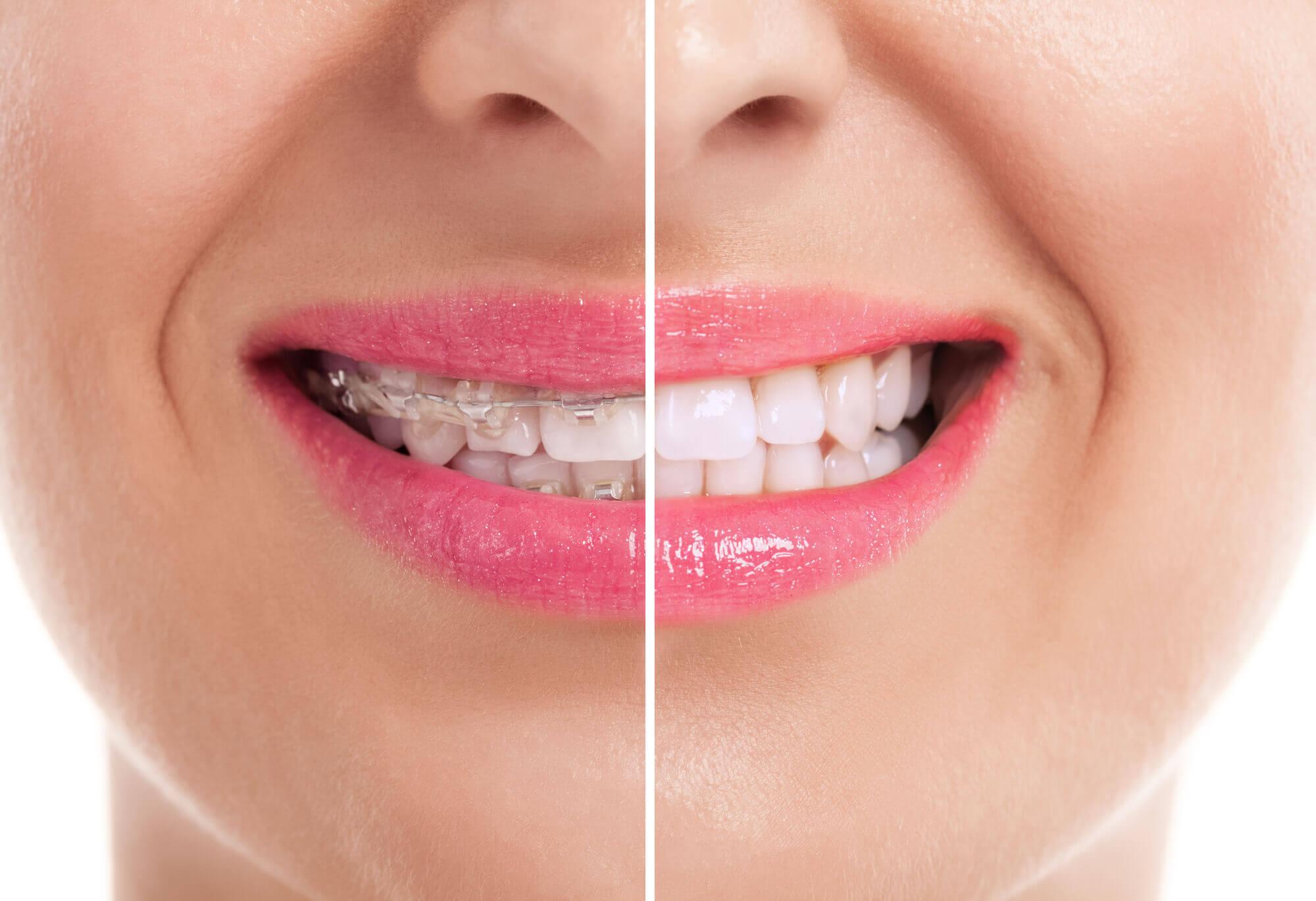 Orthodontics Aventura