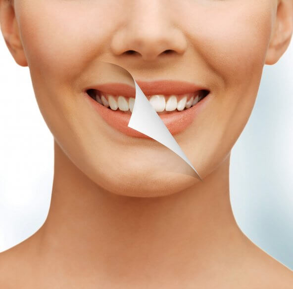 a brand new smile after a teeth whitening in North Miami
