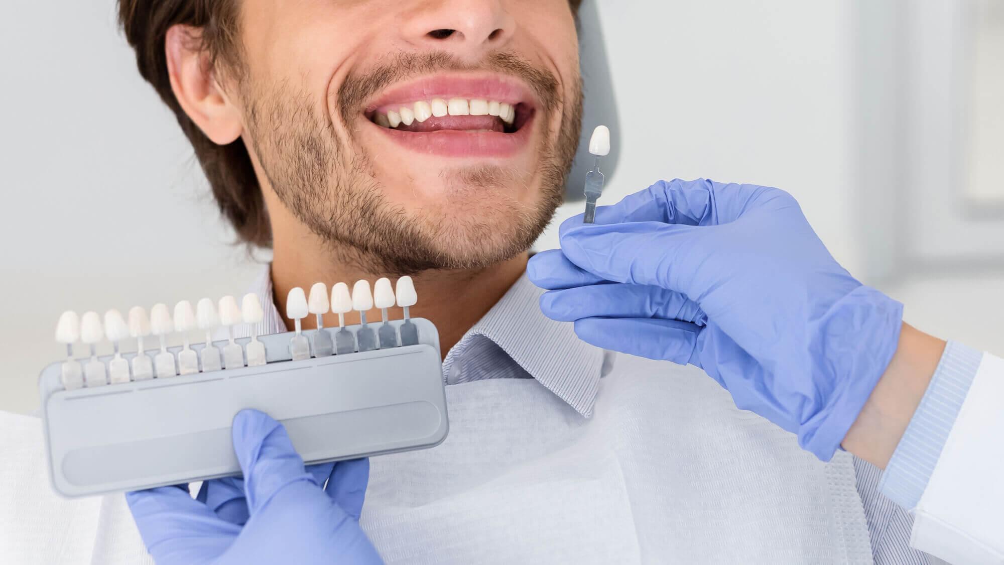Mle patient Dental Implants in Aventura