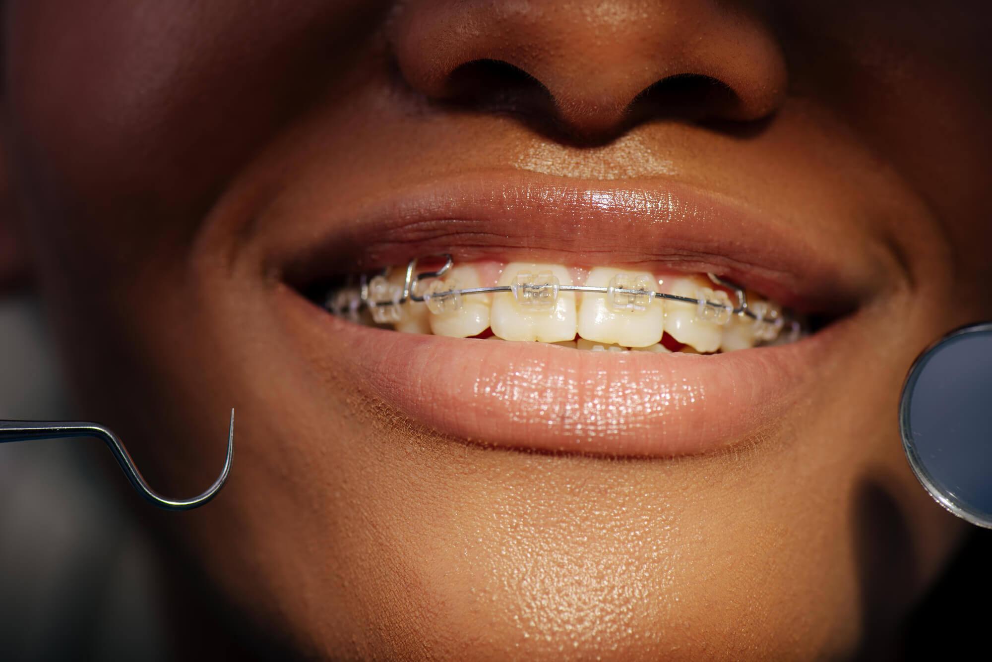 Close up of Orthodontics in Aventura